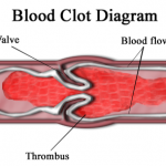 Why Does Blood Clot