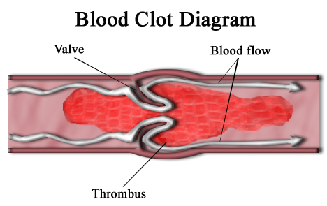 Blood Clot Why Does Blood Clot