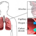 Why Does Fluid Build Up in Lungs